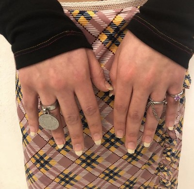 Bracelet / Ring - © D'heygere